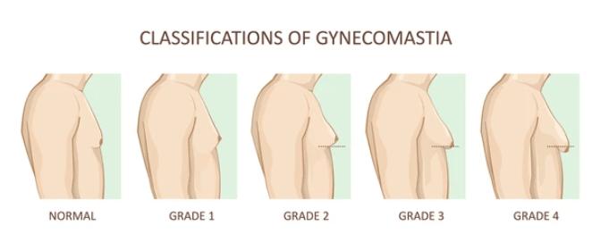 gynecomastia-grades